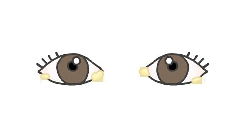 目ヤニが出ている目のイラスト