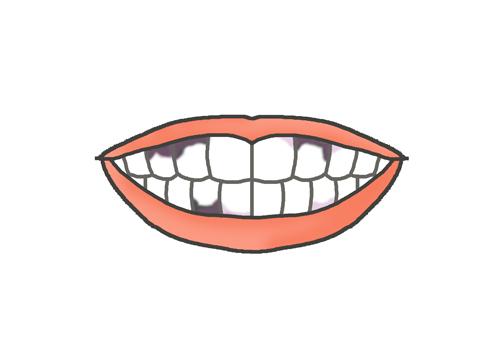 虫歯の歯のイラスト
