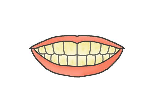 黄ばんだ歯のイラスト