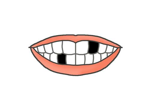 欠けた歯のイラスト